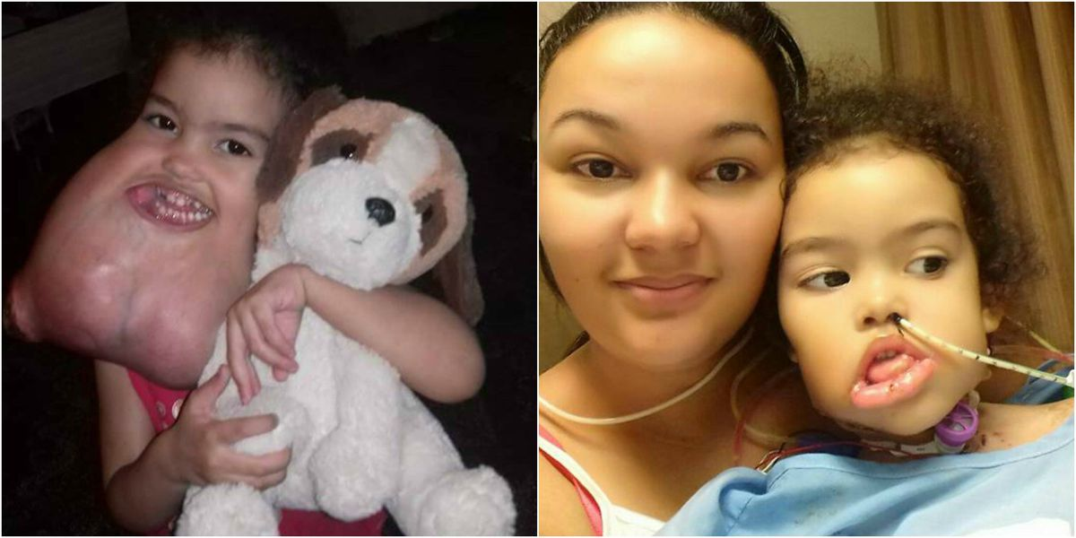 Shreveport surgeons remove rare tumor from girl's face