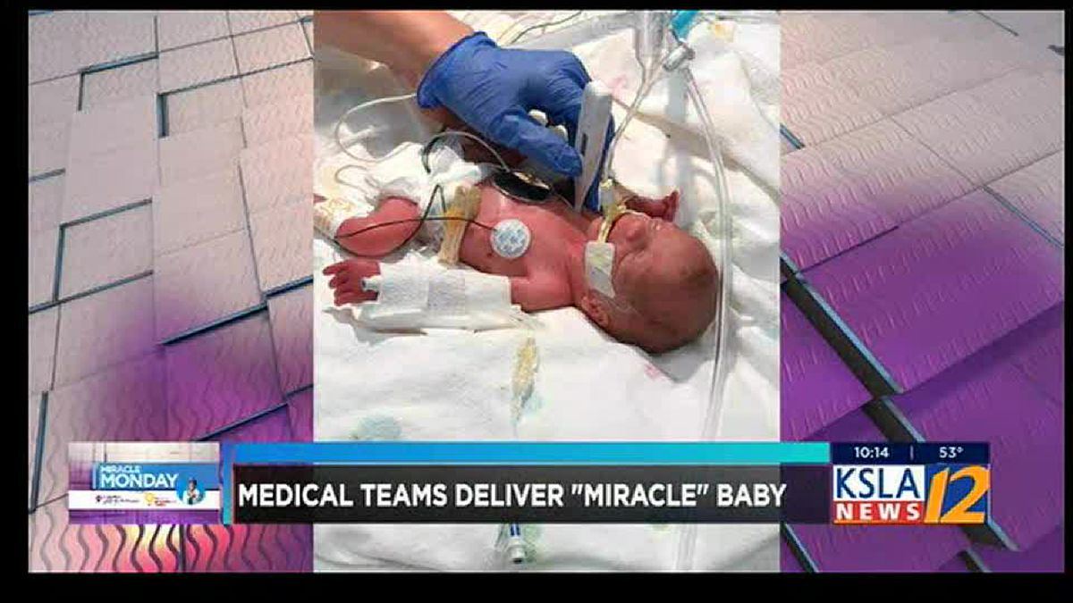 Miracle baby born 15 weeks early