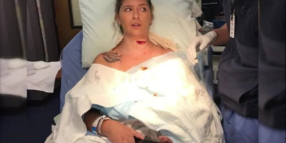 GRPAHIC: Freak lawnmower accident slices open woman's neck