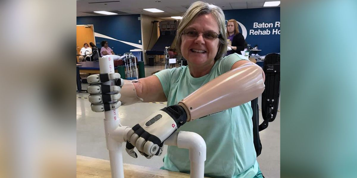 Woman who lost hands, feet to septic shock learning how to dance again